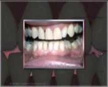 les soins dentaires cabinet dentaire du docteur olivier. Black Bedroom Furniture Sets. Home Design Ideas